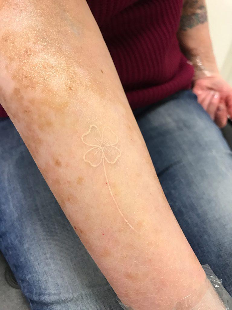 Weiße Tattoos – ein neuer Trend