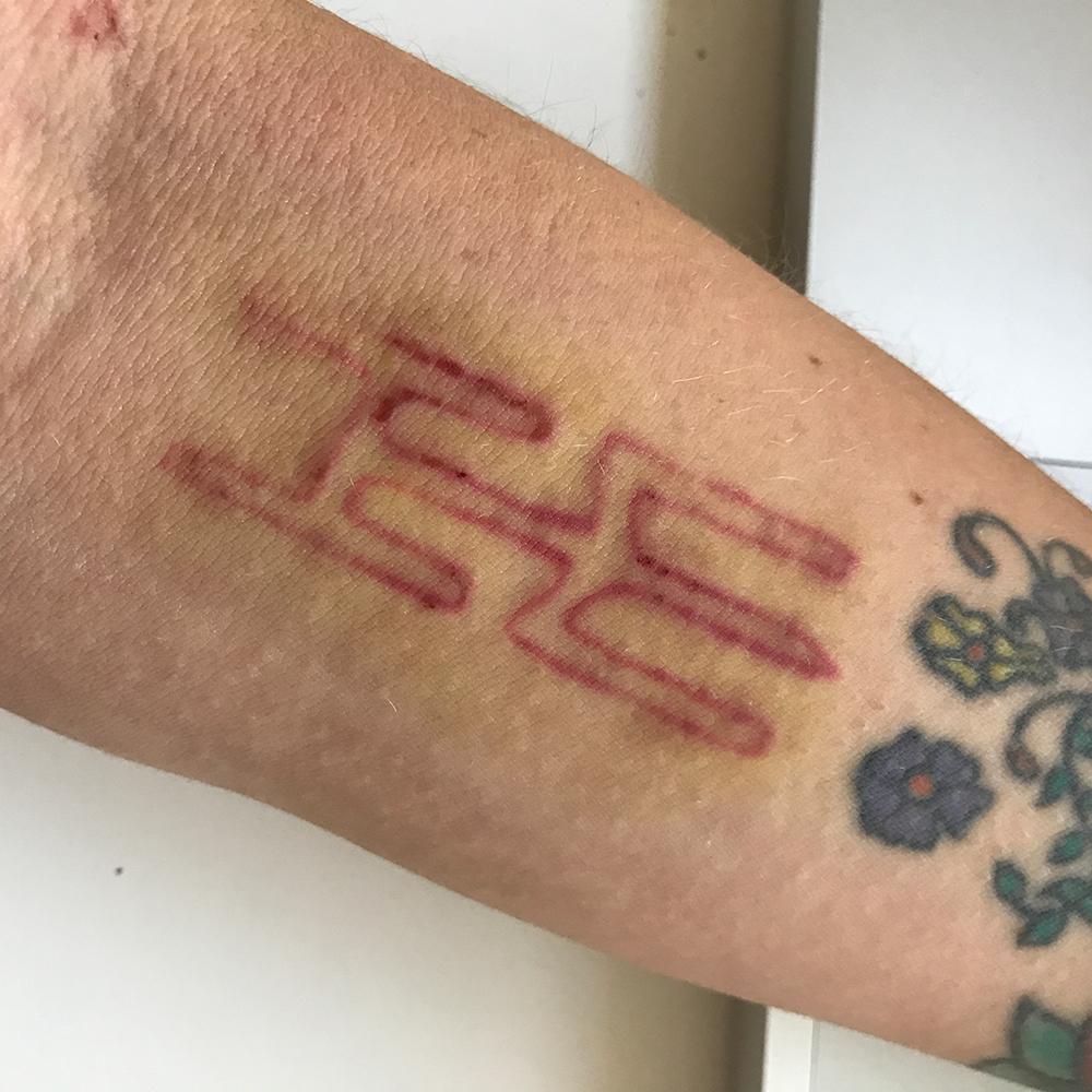 Ich Lasse Mein Tattoo Lasern Teil 2 Zum Buntspecht Tattooblog